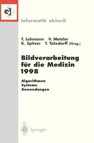 Bildverarbeitung Fa1/4r Die Medizin 1998: Algorithmen - Systeme - Anwendungen 9783540638858