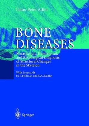 Bone Diseases 9783540650614