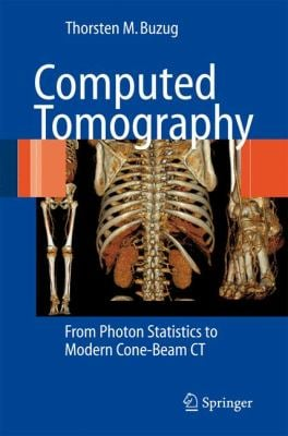 Computed Tomography: From Photon Statistics to Modern Cone-Beam CT 9783540394075