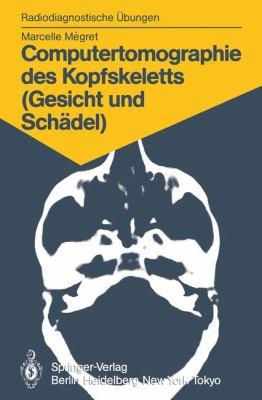 Computertomographie Des Kopfskeletts (Gesicht Und Sch del): 58 Diagnostische Bungen F R Studenten Und Praktische Radiologen 9783540154600