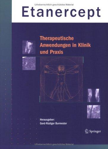 Etanercept - Therapeutische Anwendungen in Klinik Und Praxis 9783540404408