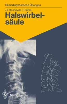 Halswirbels Ule: 60 Diagnostische Bungen F R Studenten Und Praktische Radiologen 9783540176855