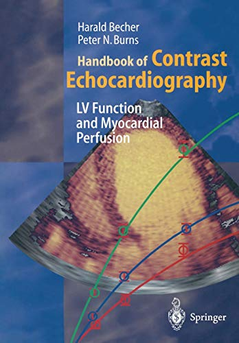 Handbook of Contrast Echocardiography: Left Ventricular Function and Myocardial Perfusion 9783540670834