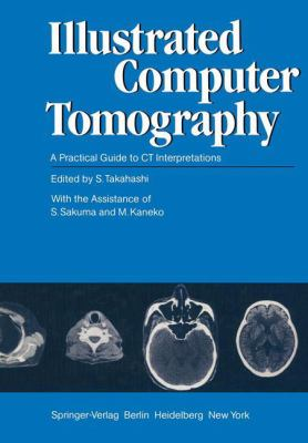 Illustrated Computer Tomography: A Practical Guide to CT Interpretations 9783540114321