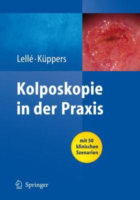 Kolposkopie in Der Praxis 9783540783282