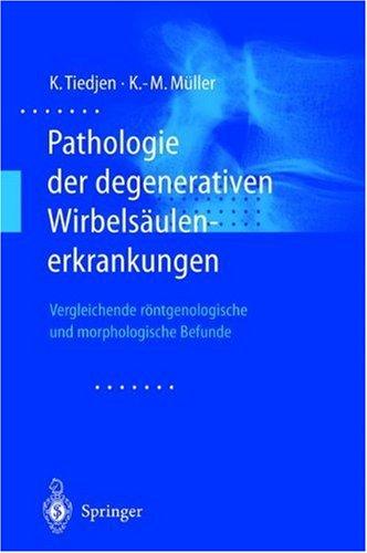 Pathologie Der Degenerativen Wirbels Ulenerkrankungen: Vergleichende R Ntgenologische Und Morphologische Befunde 9783540677741