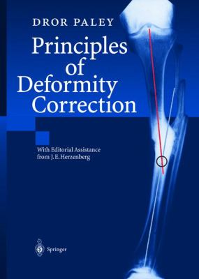Principles of Deformity Correction 9783540416654