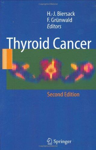 Thyroid Cancer - 2nd Edition
