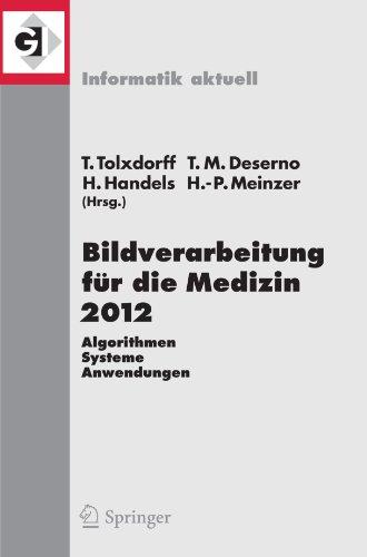Bildverarbeitung F R Die Medizin 2012: Algorithmen - Systeme - Anwendungen. Proceedings Des Workshops Vom 18. Bis 20. M Rz 2012 in Berlin 9783642285011