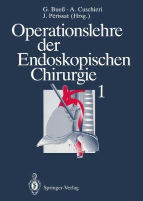 Operationslehre Der Endoskopischen Chirurgie 1: Band 1 9783642782879