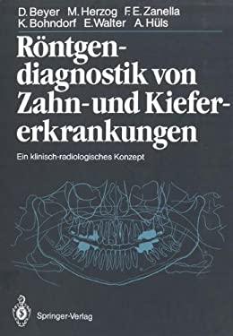 R Ntgendiagnostik Von Zahn- Und Kiefererkrankungen: Ein Klinisch-Radiologisches Konzept 9783642710643