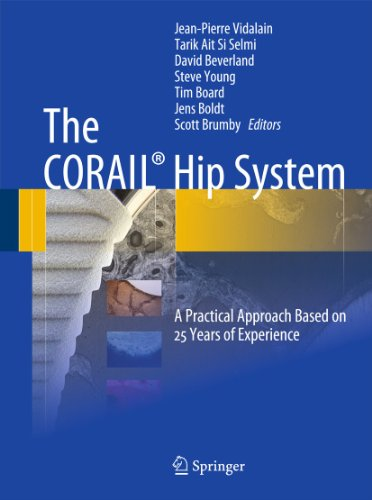 The CORAIL Hip System: A Practical Approach Based on 25 Years of Experience 9783642183959