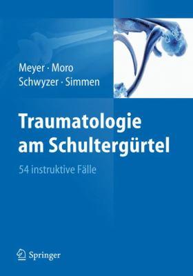 Traumatologie Am Schulterg Rtel: 54 Instruktive F Lle 9783642218170