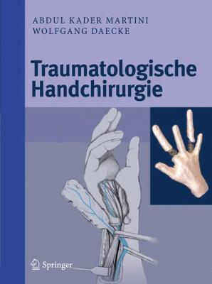 Traumatologische Handchirurgie 9783642009877