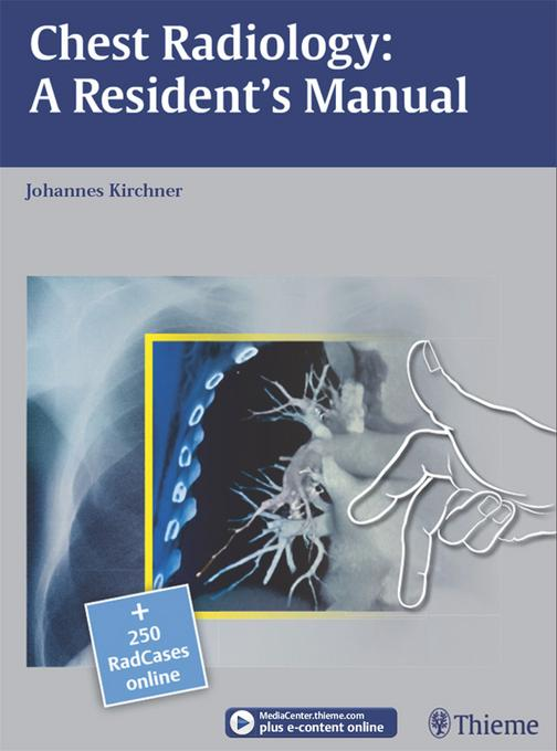 Chest Radiology: A Resident's Manual: A Resident's Manual EB2370004334271