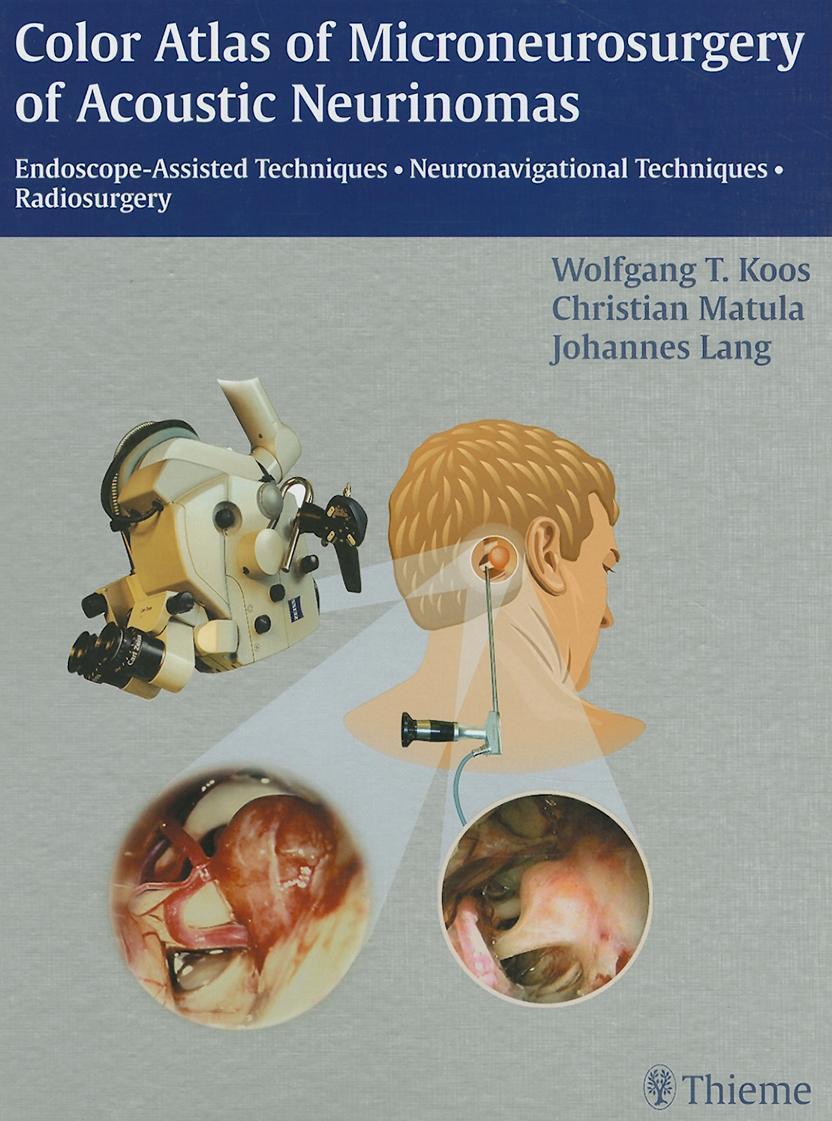 Color Atlas of Microneurosurgery of Acoustic Neurinomas EB2370004333205