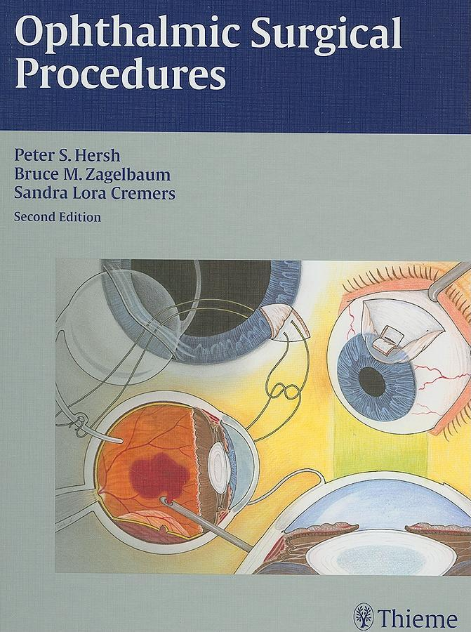 Ophthalmic Surgical Procedures EB2370004330693