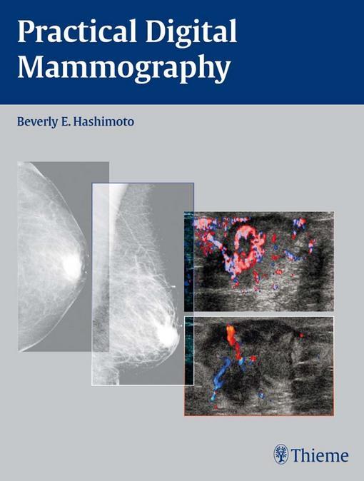 Practical Digital Mammography EB2370004331812