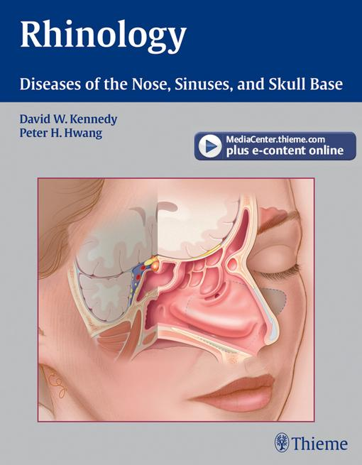 Rhinology: Diseases of the Nose, Sinuses, and Skull Base EB2370004411606
