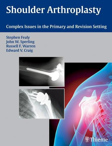 Shoulder Arthroplasty: Complex Issues in the Primary and Revision Setting EB2370004329956
