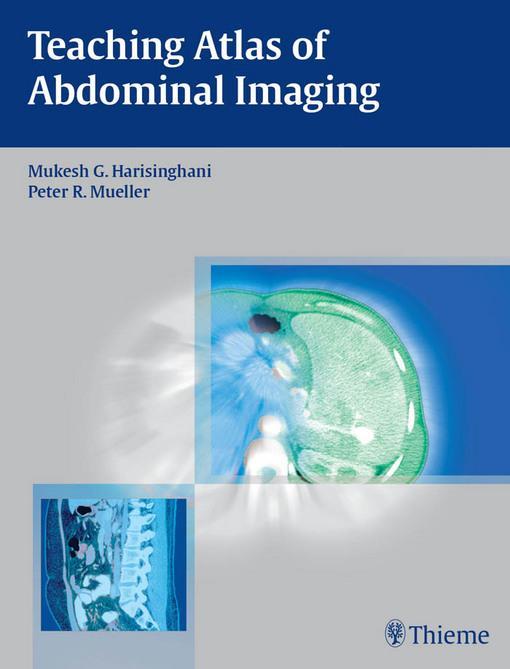 Teaching Atlas of Abdominal Imaging EB2370004332574
