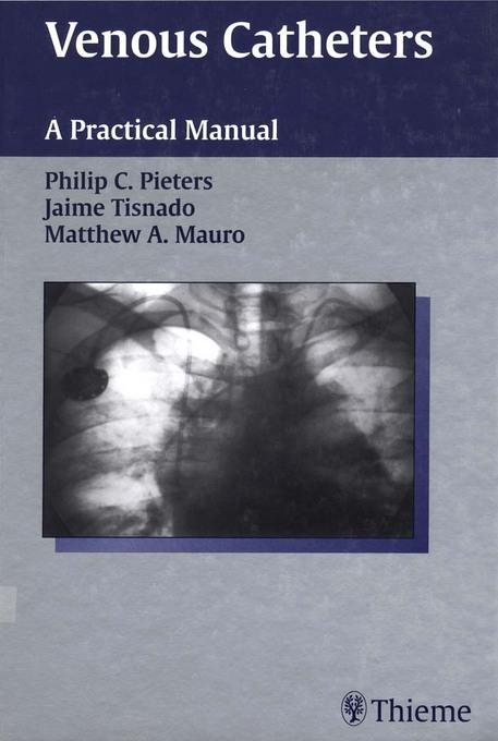 Venous Catheters: A Practical Manual EB2370004334011