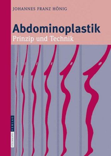 Abdominoplastik: Prinzip Und Technik 9783798518162