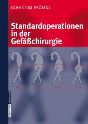 Standardoperationen in Der Gef Chirurgie 9783798514607