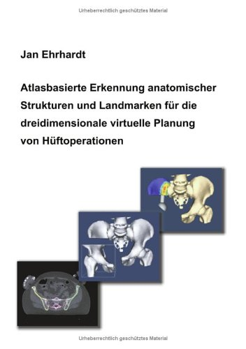 Atlasbasierte Erkennung Anatomischer Strukturen Und Landmarken Fur Die Dreidimensionale Virtuelle Planung Von H Ftoperationen 9783833422904
