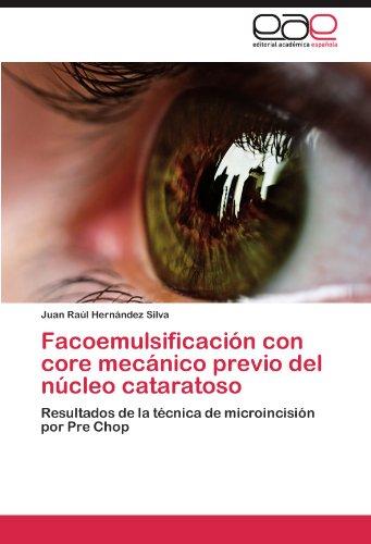 Facoemulsificaci N Con Core Mec Nico Previo del N Cleo Cataratoso 9783847353492