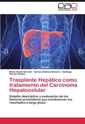 Trasplante Hep Tico Como Tratamiento del Carcinoma Hepatocelular 9783845489438