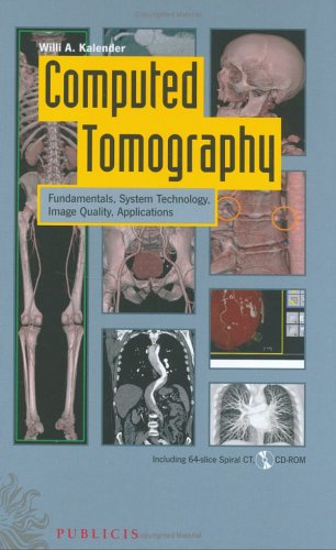 Computed Tomography: Fundamentals, System Technology, Image Quality, Applications [With CDROM] 9783895782169