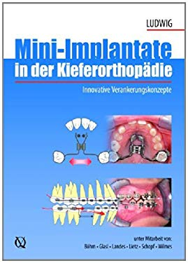 Mini-Implants in Orthodontics: Innovative Anchorage Concepts 9783938947470
