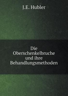 Die Oberschenkelbruche und ihre Behandlungsmethoden (German Edition)