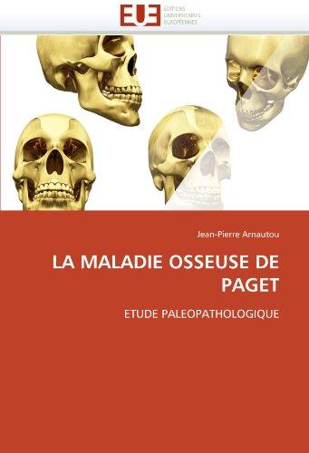 La Maladie Osseuse de Paget 9786131547348