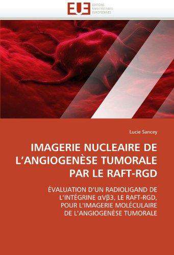 Imagerie Nucleaire de L'Angiogenese Tumorale Par Le Raft-Rgd 9786131560644