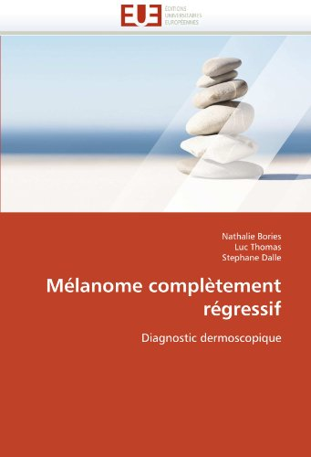 M Lanome Compl Tement R Gressif 9786131568275
