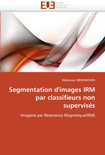 Segmentation D'Images Irm Par Classifieurs Non Supervis?'s