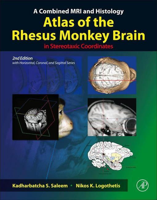 A Combined MRI and Histology Atlas of the Rhesus Monkey Brain in Stereotaxic Coordinates EB9780123850881