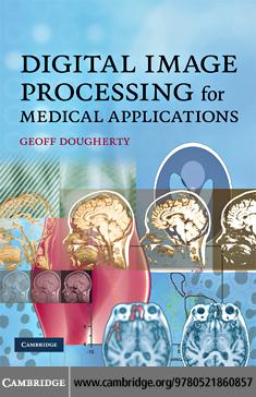 Digital Image Processing for Medical Applications EB9780511530371