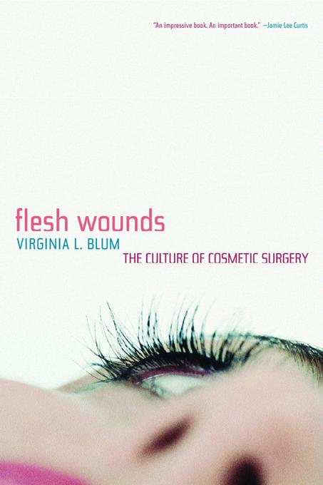 Flesh Wounds: The Culture of Cosmetic Surgery EB9780520901582