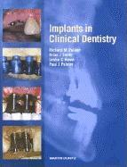 Implants in Clinical Dentistry EB9780203417379