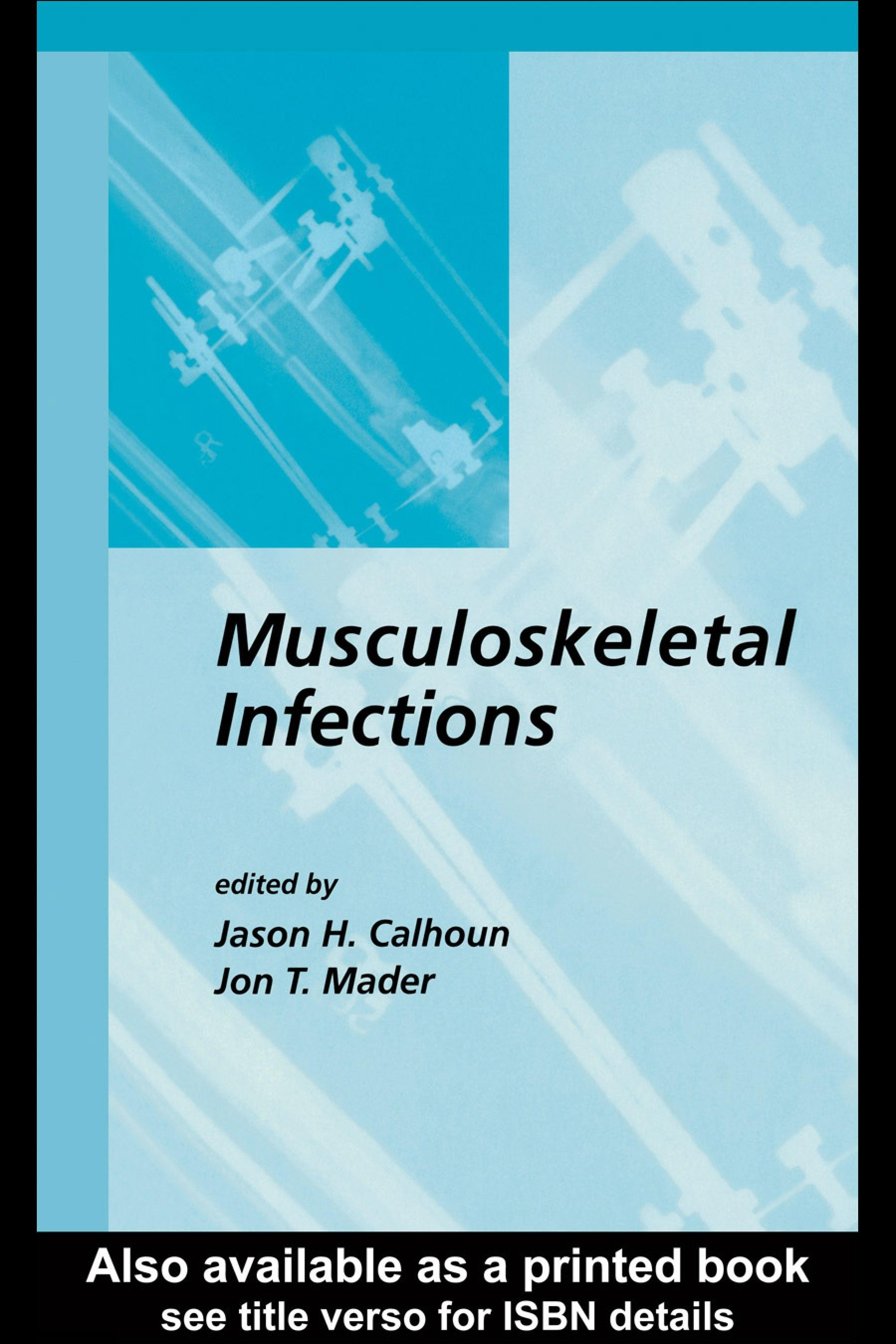 Musculoskeletal Infections EB9780203911280