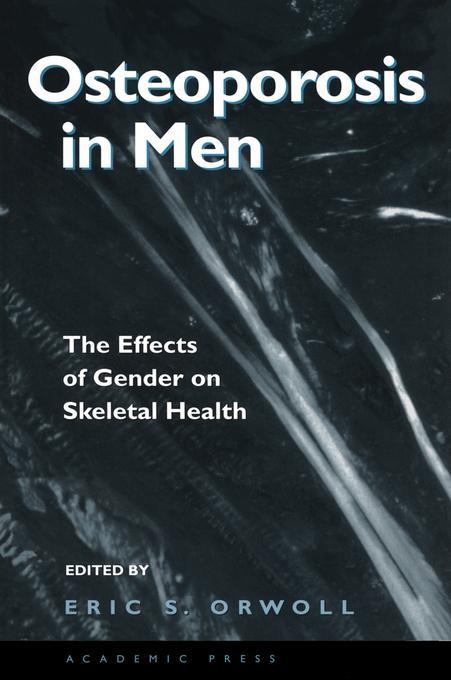 Osteoporosis in Men: The Effects of Gender on Skeletal Health EB9780080538259