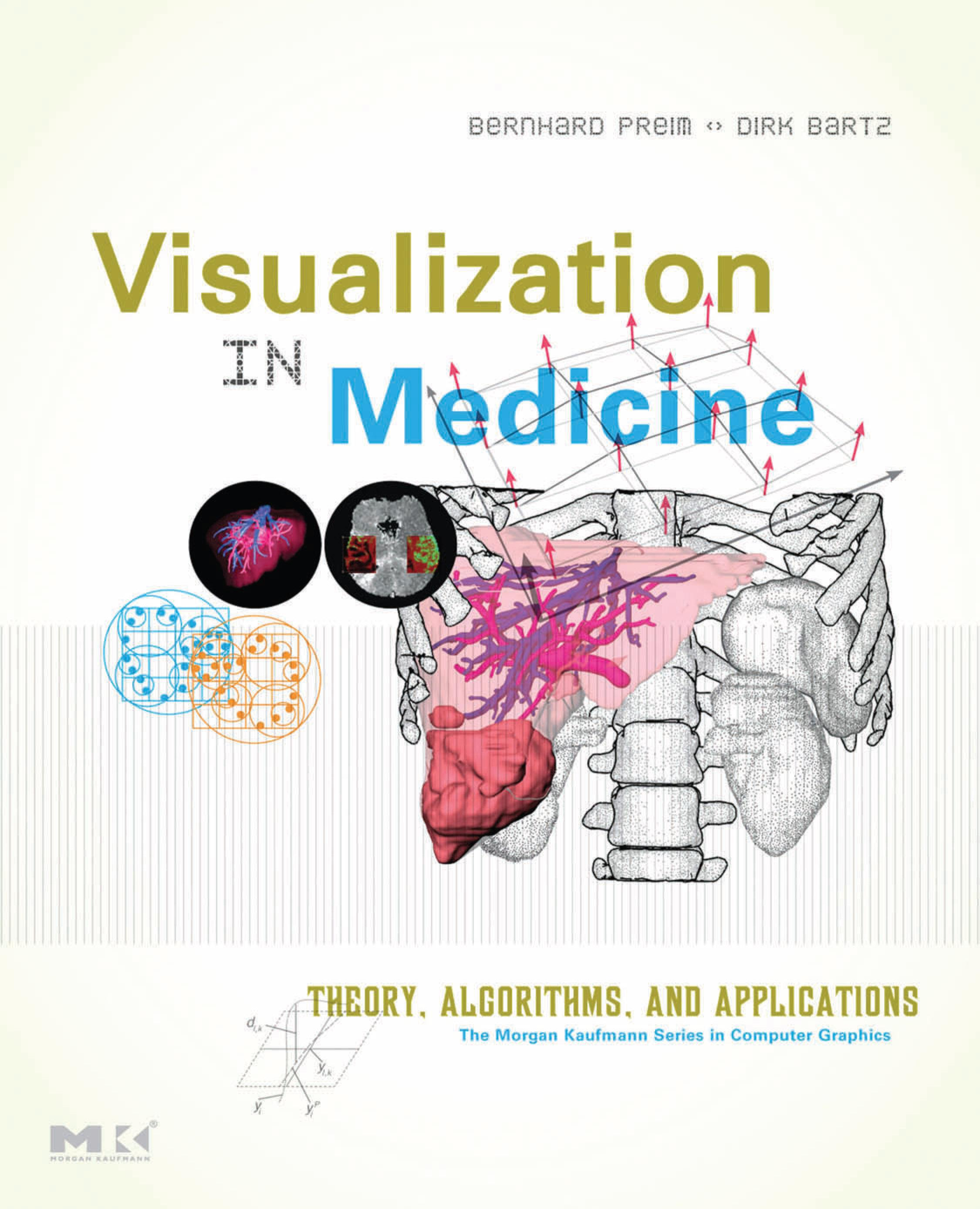 Visualization in Medicine: Theory, Algorithms, and Applications EB9780080549057