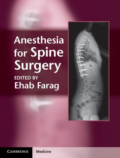 Anesthesia for Spine Surgery EB9781139415453