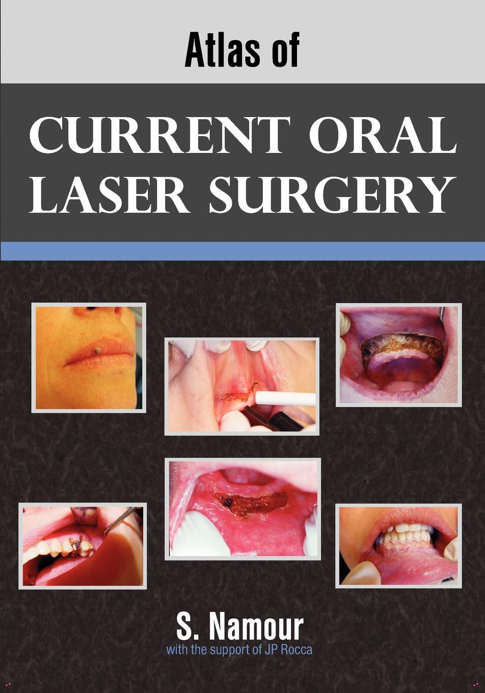 Atlas of Current Oral Laser Surgery EB9781612330297