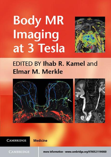 Body MR Imaging at 3.0 Tesla EB9781139089128