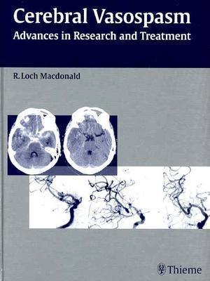 Cerebral Vasospasm: Advances in Research and Treatment EB9781604065596