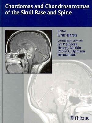 Chordomas and Chondrosarcomas of the Skull Base and Spine EB9781604064445
